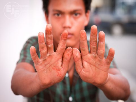 The hands of Naung Than Shwe, 18, one of 14 Myanmar migrant workers rescued from the port in Kantang, southern Thailand, by the Department of Special Investigations (DSI) and local police. The injuries were caused by pulling up nets and equipment. EJF accompanied the DSI to document the rescue. EJF interviewed five of the rescued workers, who all reported debt bondage, excessive working hours, threats of violence, acts of violence and murder. *Interviewed by EJF 16.03.13* - see report & spreadsheet for further details.