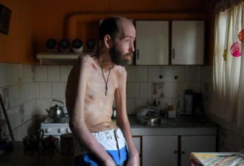 Glifosato, muore il simbolo della lotta all'agrochimica argentina